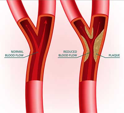 Arterial Plaque Buildup and Removal in Jeannette, PA