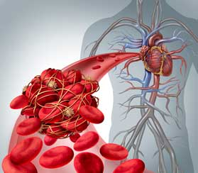 Blood Clot Treatment in Holliday, TX