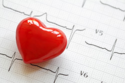 Electrocardiogram (EKG) in Fishers, IN