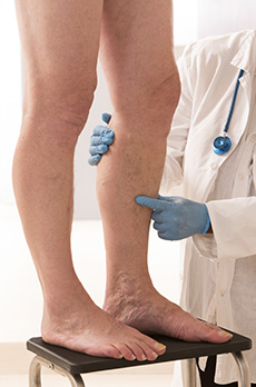 Deep Vein Thrombosis Treatment in Midland Park, NJ